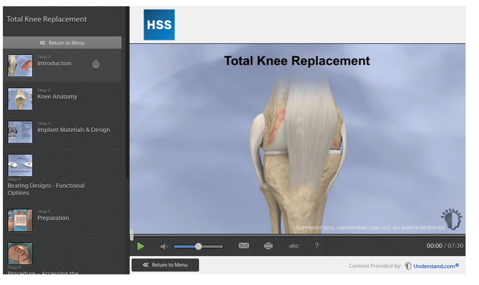 Knee Bones with replacement!