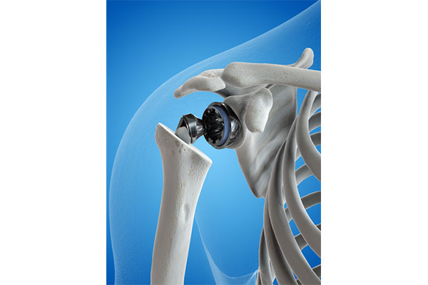 total Shoulder Replacement surgery - feature image