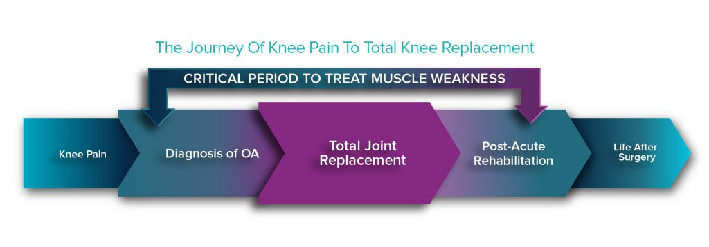 the journey of knee pain to total knee replacement